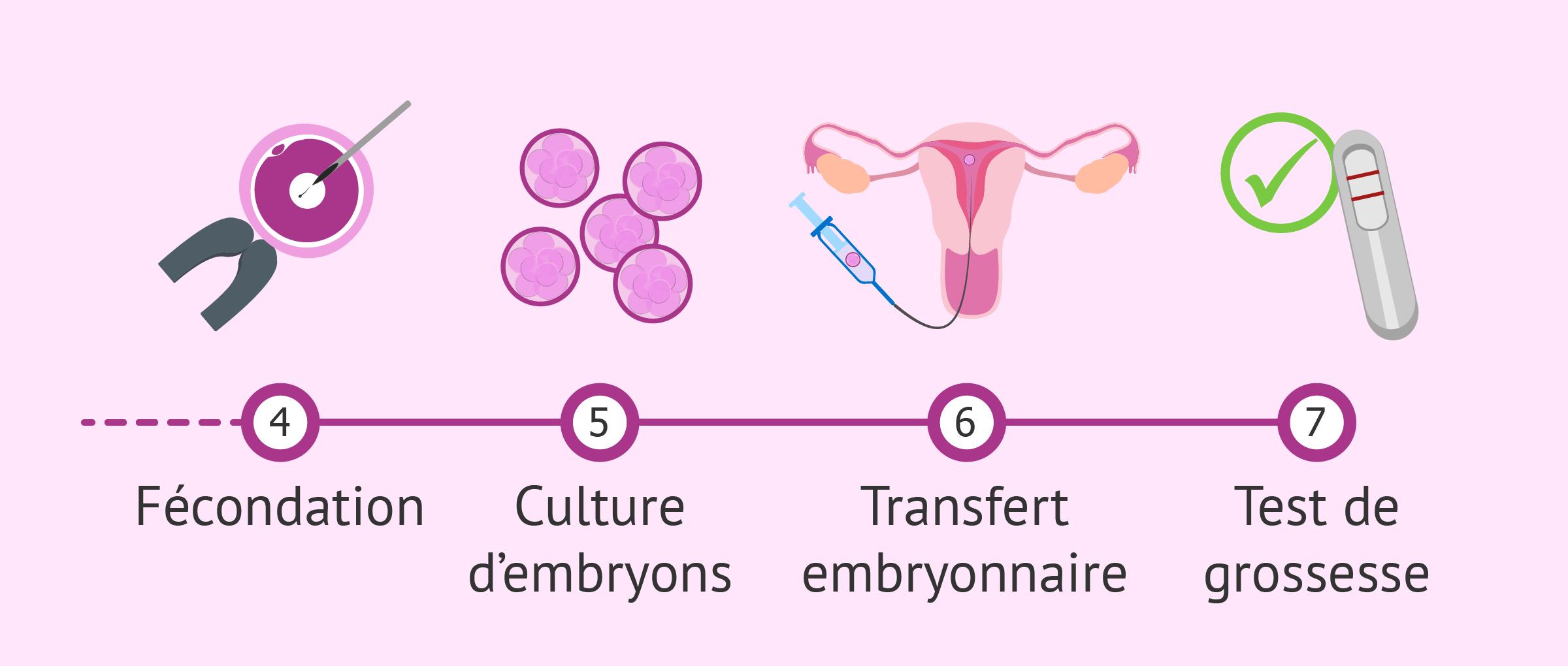 Succès de la fécondation in vitro