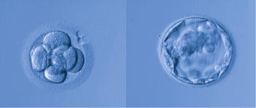 Transfert d'embryons en République tchèque