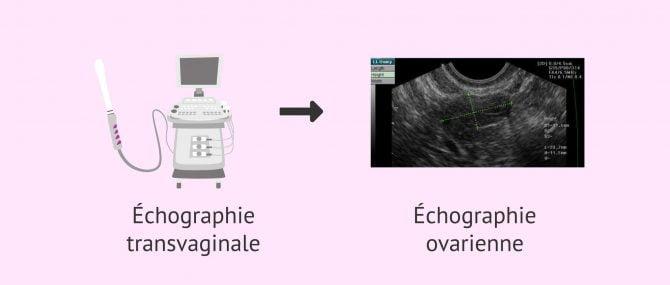 Imagen: Comptage des follicules antraux par échographie transvaginale