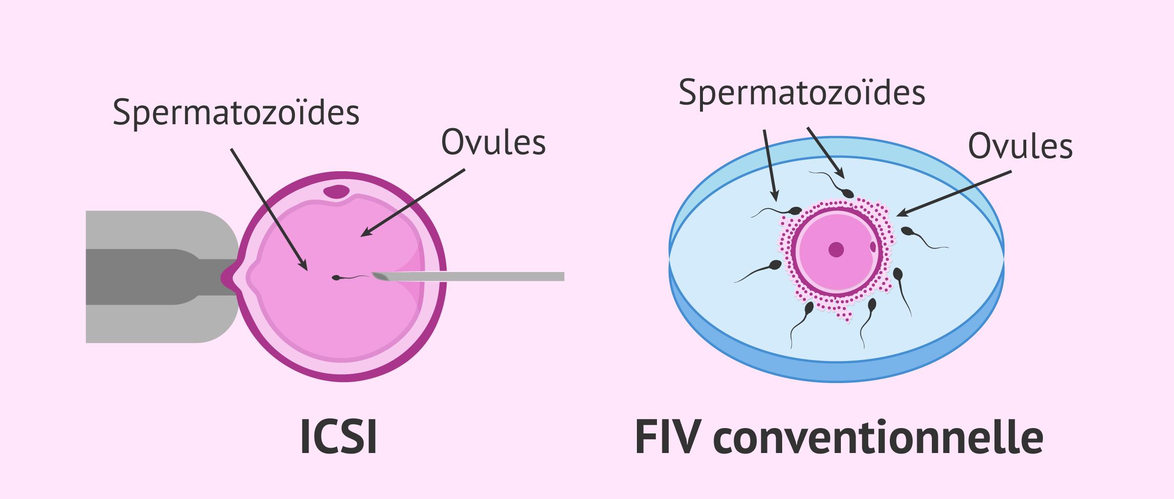 Imagen: Comparaison entre la FIV conventionnelle et l'ICSI