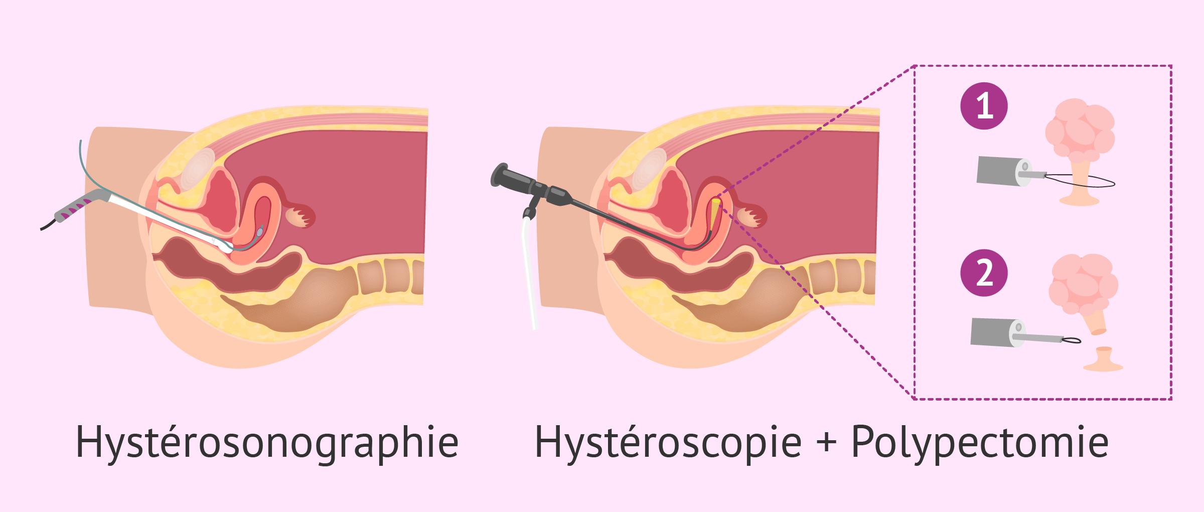 Diagnostic et traitement des polypes utérins