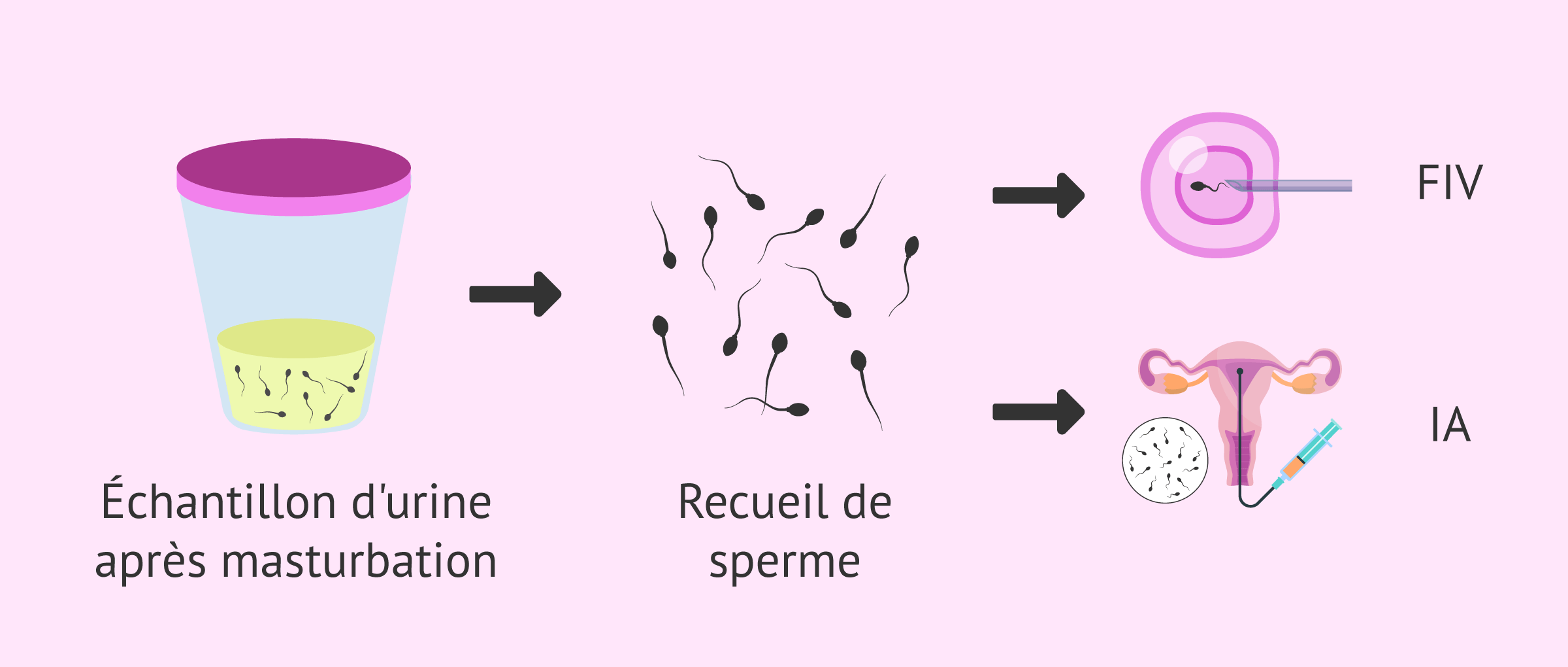 Grossesse avec éjaculation rétrograde