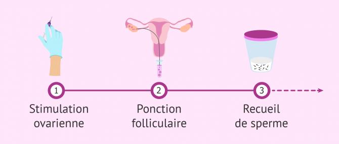 Imagen: Définition de la technique de Fécondation In Vitro.