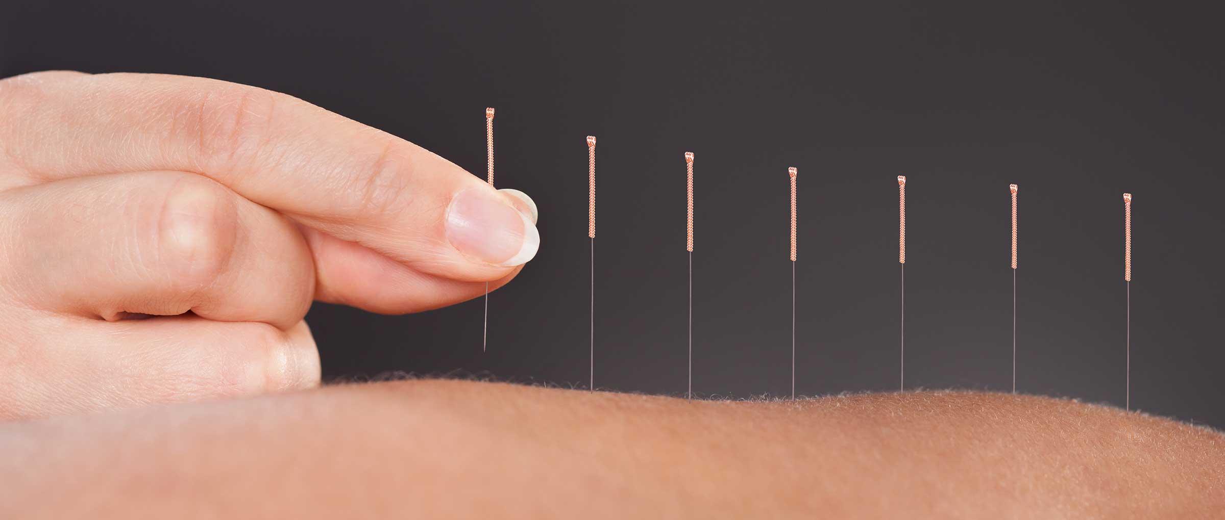Les techniques d'acupuncture peuvent être des remèdes aux problèmes d'infertilité masculine.
