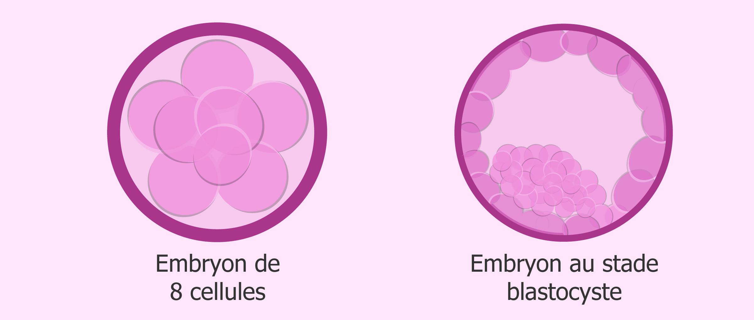 Culture de l'embryon après une FIV: transfert à J3 ou J5