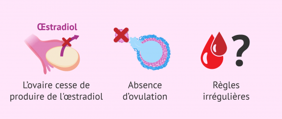 Diagnostic d'insuffisance ovarienne prématurée (IOP)