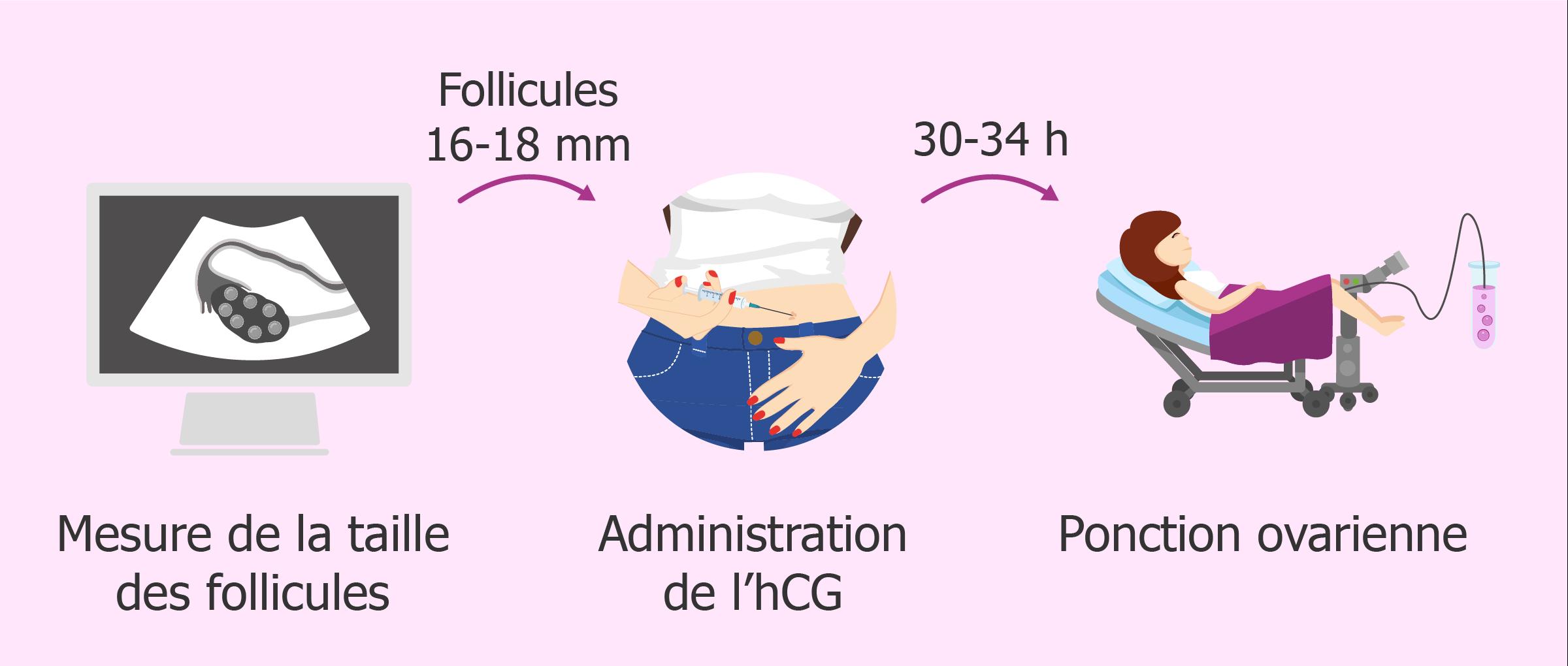 Recommandations après la ponction folliculaire