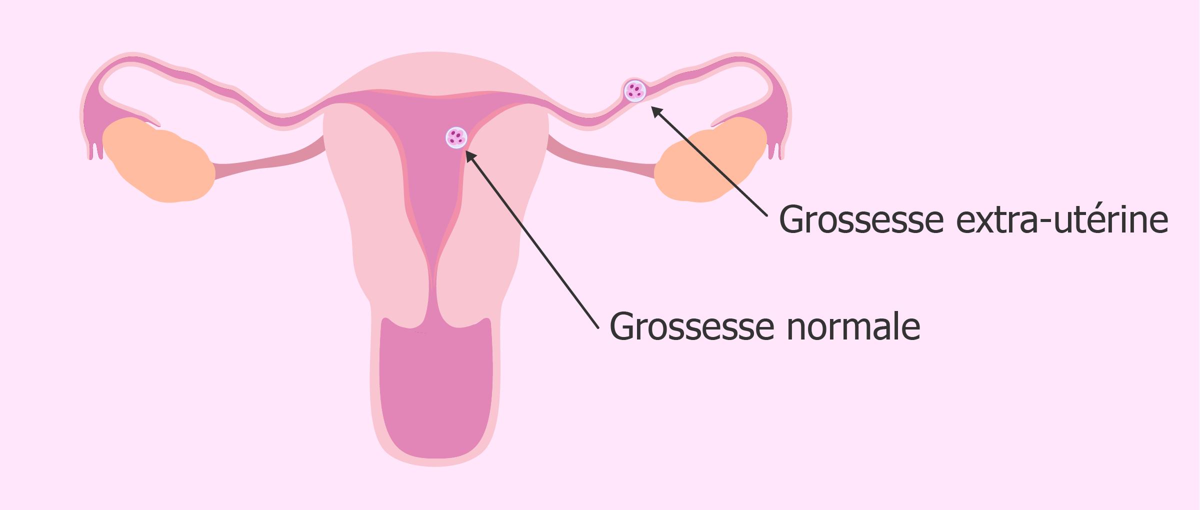 Grossesse extra-utérine après un transfert embryonnaire