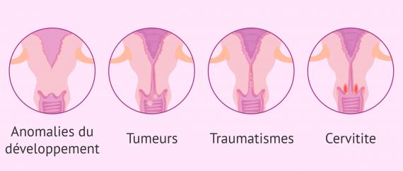 Altérations structurelles du cervix