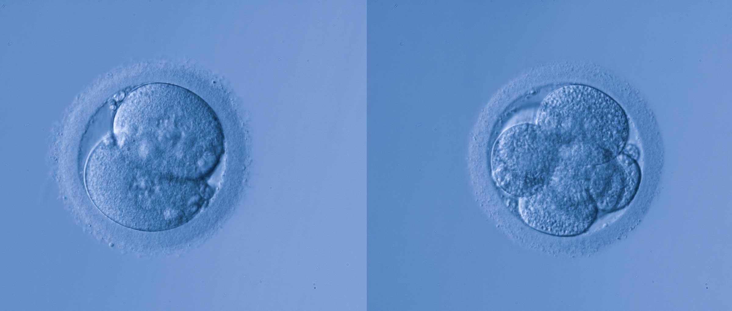 Qualité des embryons