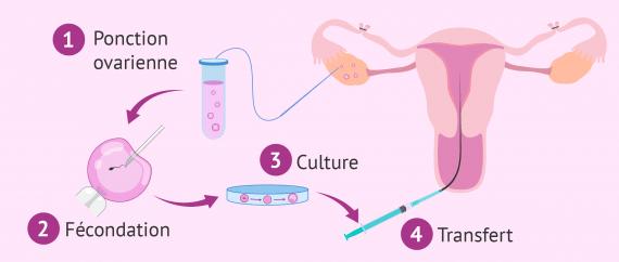 La ligature des trompes et FIV