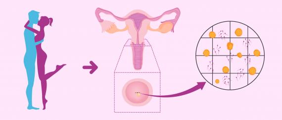 Test post-coïtal pour évaluer le facteur cervical