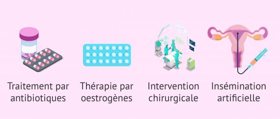 Traitements possibles pour traiter le facteur cervical