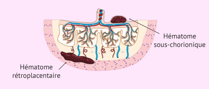 Types d'hématomes intra-utérins