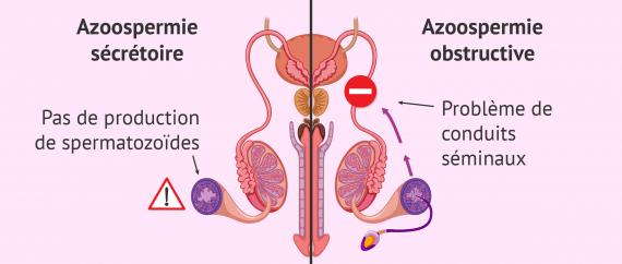 Azoospermie sécrétoire ou obstructive?