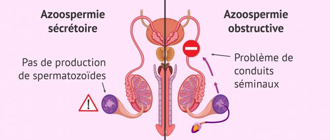 Azoospermie sécrétoire et obstructive: causes et diagnostic