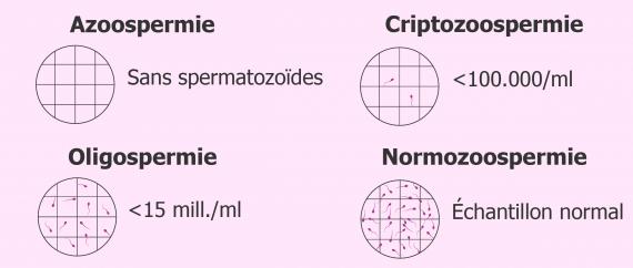 Qu'est-ce que l'azoospermie?