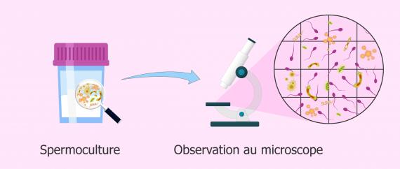 Spermoculture positive: bactéries dans une culture de sperme