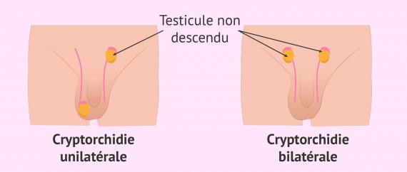 La cryptorchidie