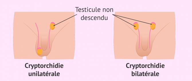 Chapitre 9 - Lésions méniscales du genou
