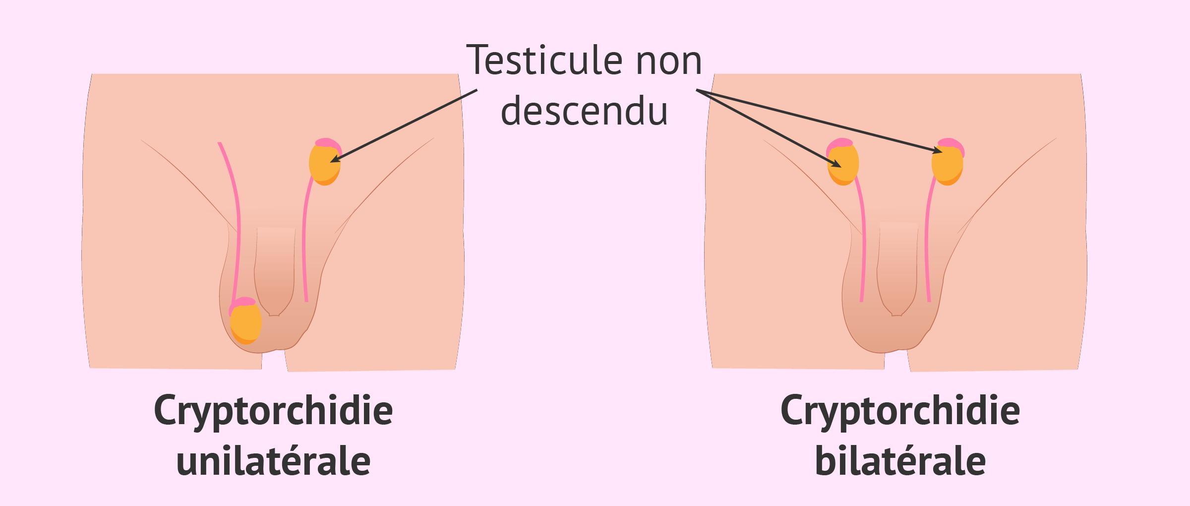 Cryptorchidie bilatérale: définition du testicule non descendu