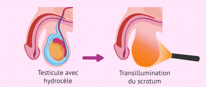 Diagnostic par transillumination du scrotum