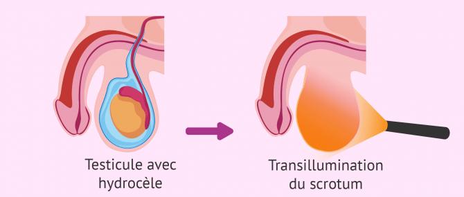 Diagnostic par transillumination du scrotum