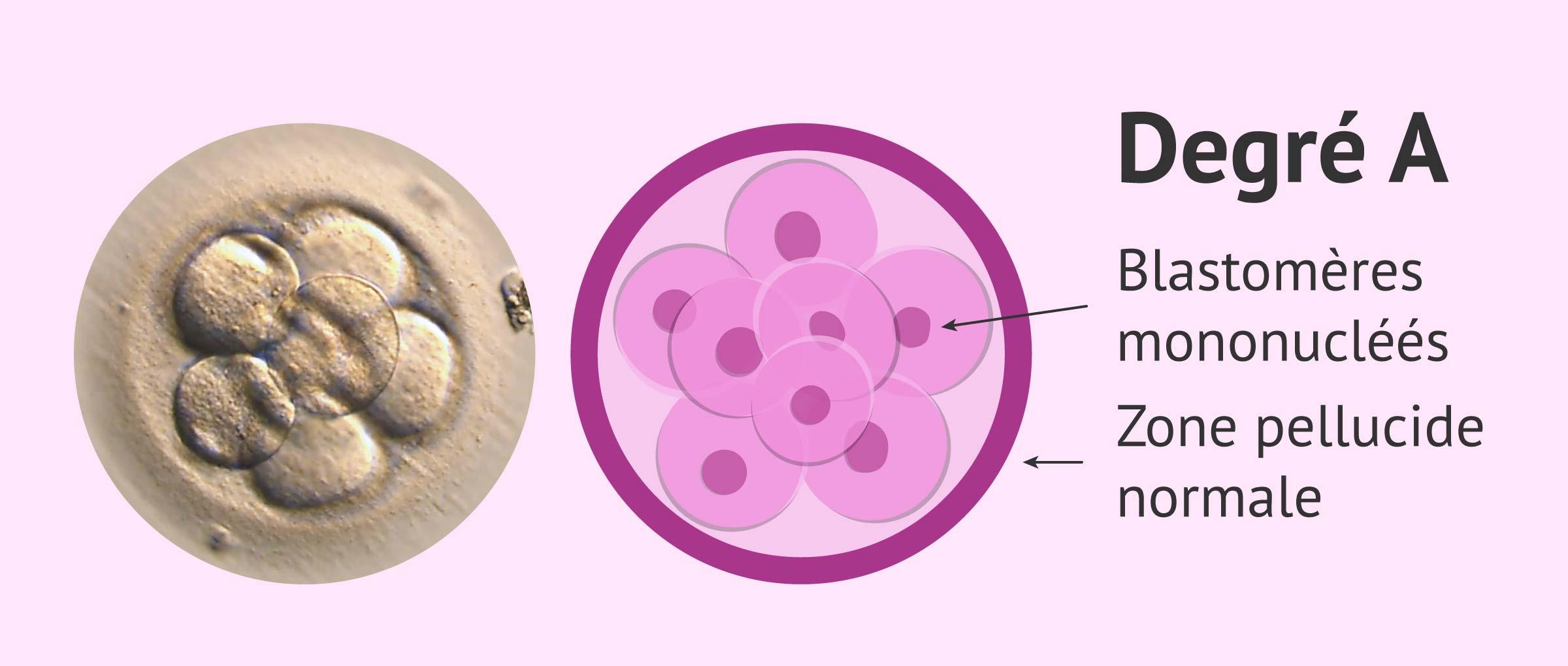 Imagen: Classifier embryons: qualité A