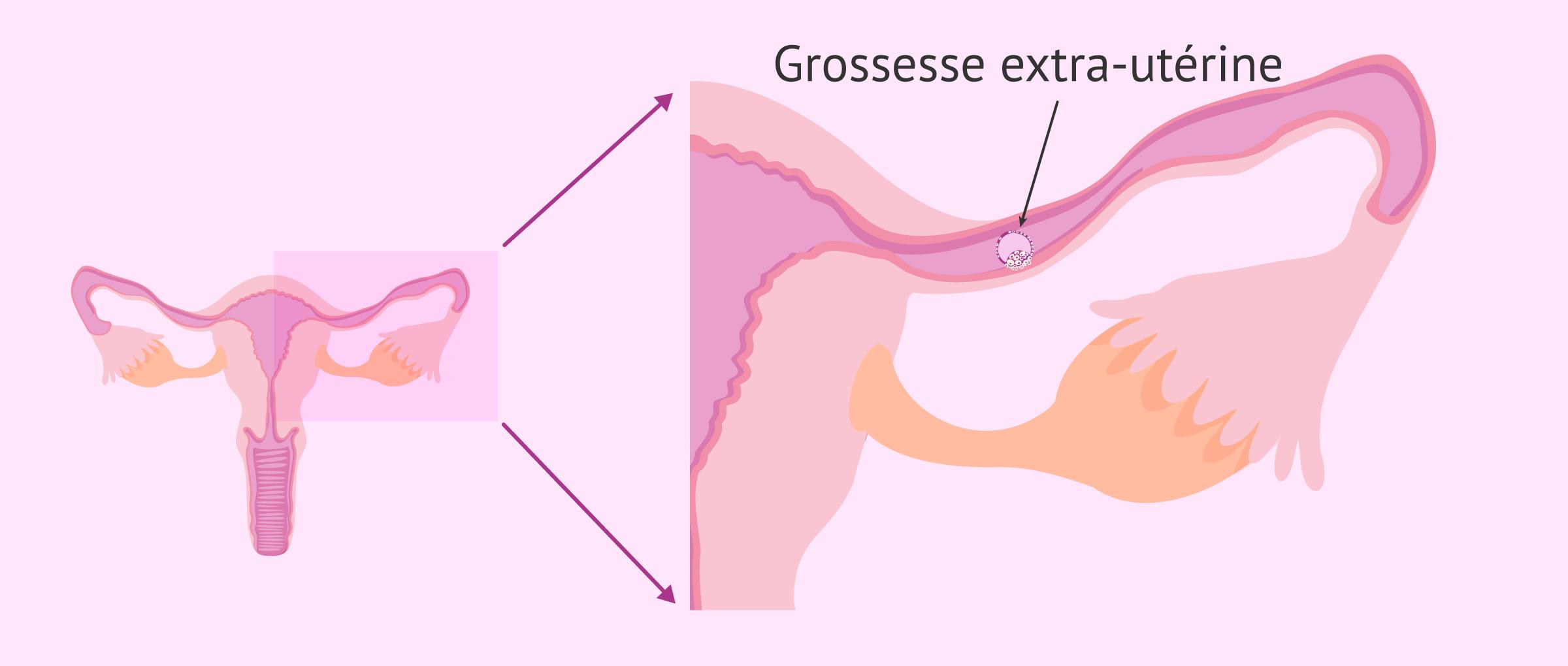 Grossesse extra-utérine dans l'insémination artificielle
