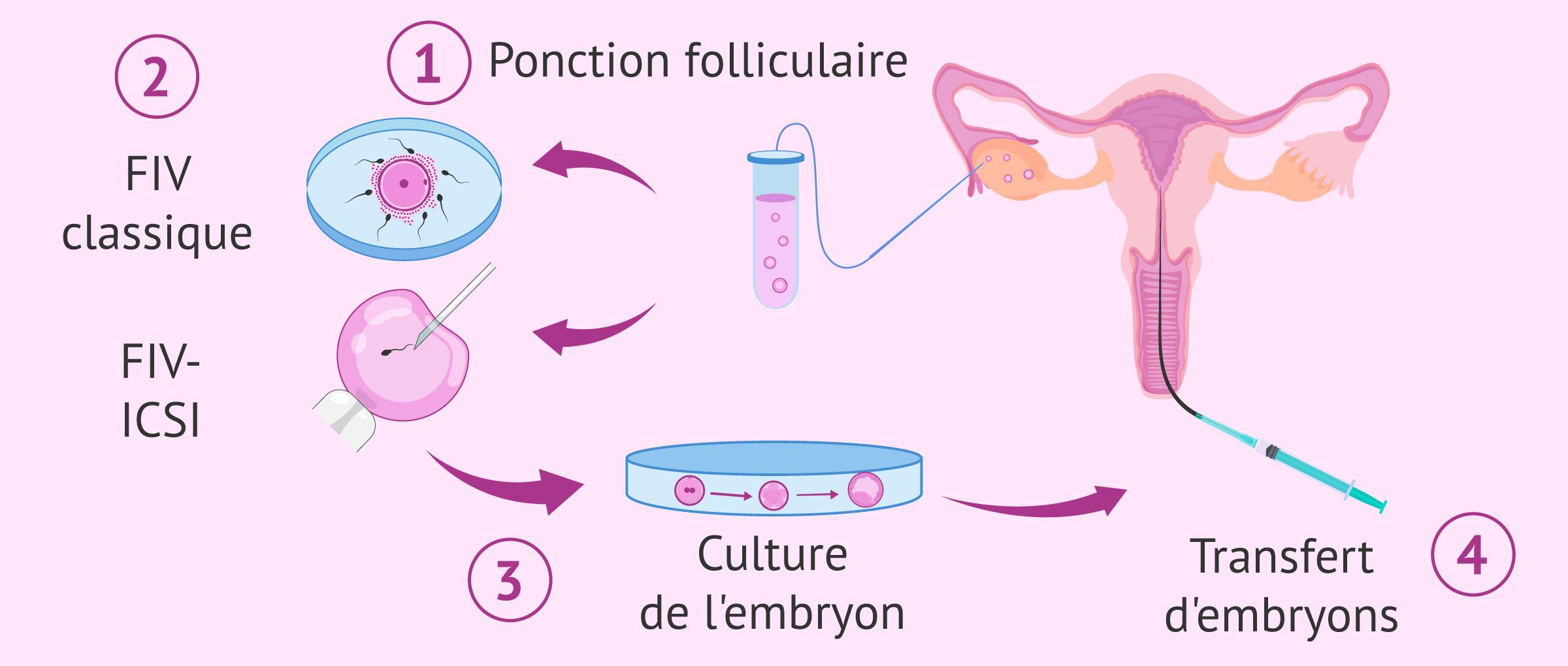 La procédure de FIV classique