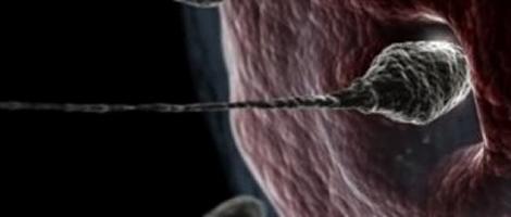 La ponction ovarienne, tout comme en FIV, fait partie du processus de la technique de procréation ZIFT.