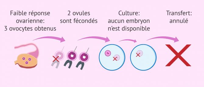 Annulation du transfert d'embryon par faible réponse ovarienne