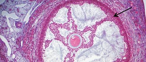 Ovulation déclenchée par le pic de LH