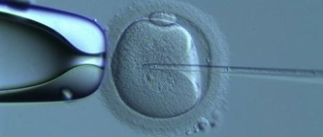Micro-injection spermatique d'un ovocyte