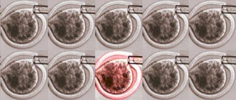 Meilleur embryon, meilleur moment