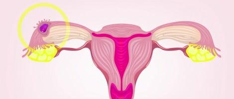 Causes de la grossesse extra-utérine