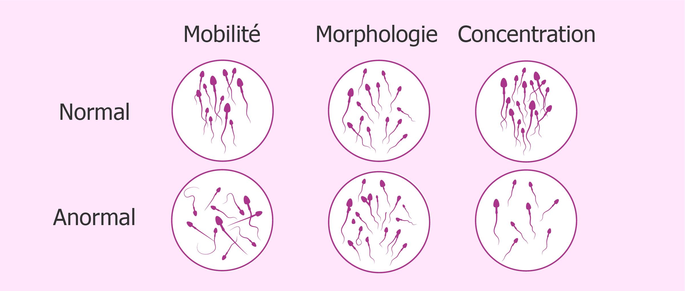 Problèmes de mobilité, morphologie ou concentration des spermatozoïdes