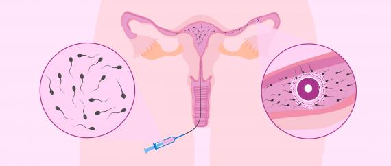 Méthodes de PMA: l'insémination artificielle