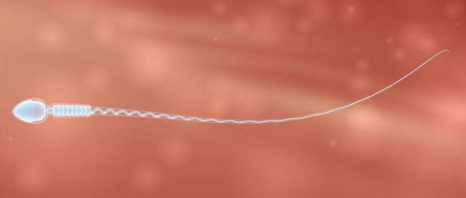 Spermatozoïdes de donneur anonyme