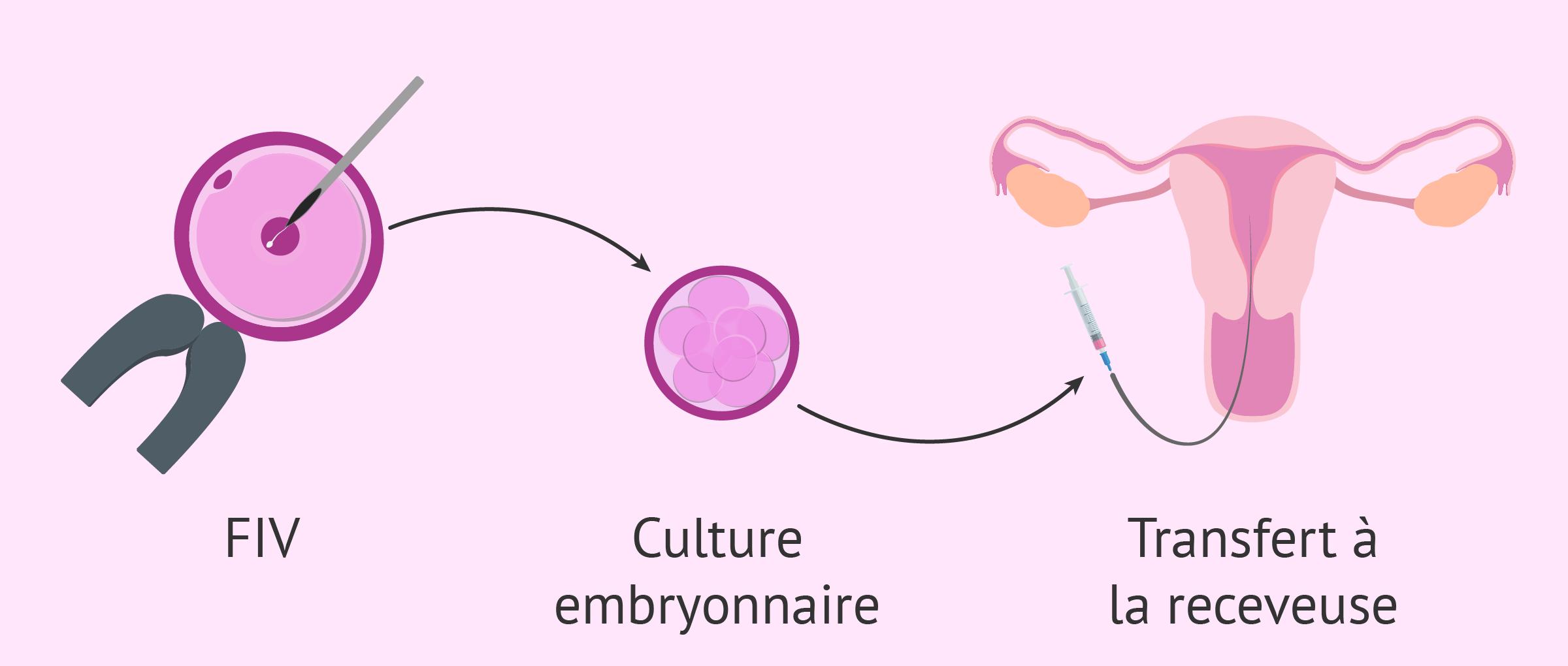 Fécondation in vitro avec ovocytes de donneuse