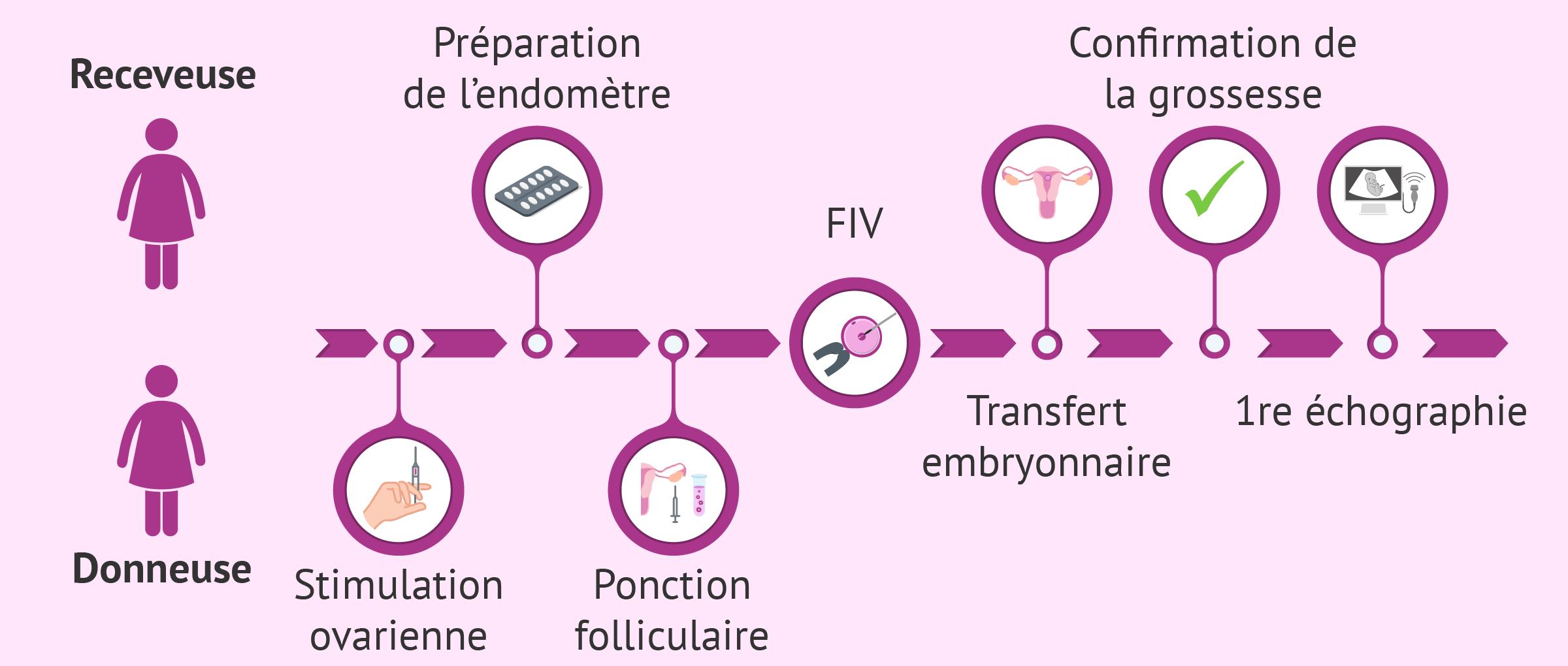 Procédure de don d'ovocytes étape par étape