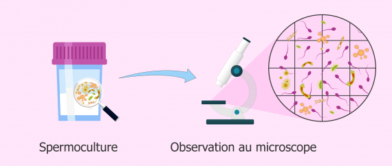 bacteries-dans-une-spermoculture