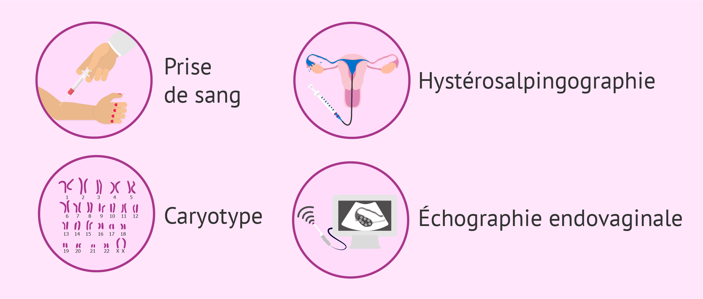 Bilan d'infertilité chez la femme