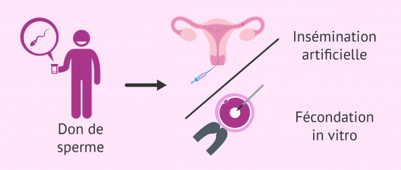 Don de sperme en procréation assistée