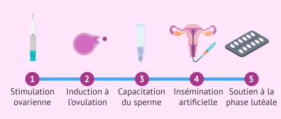 Étapes du traitement d'insémination artificielle (IA)