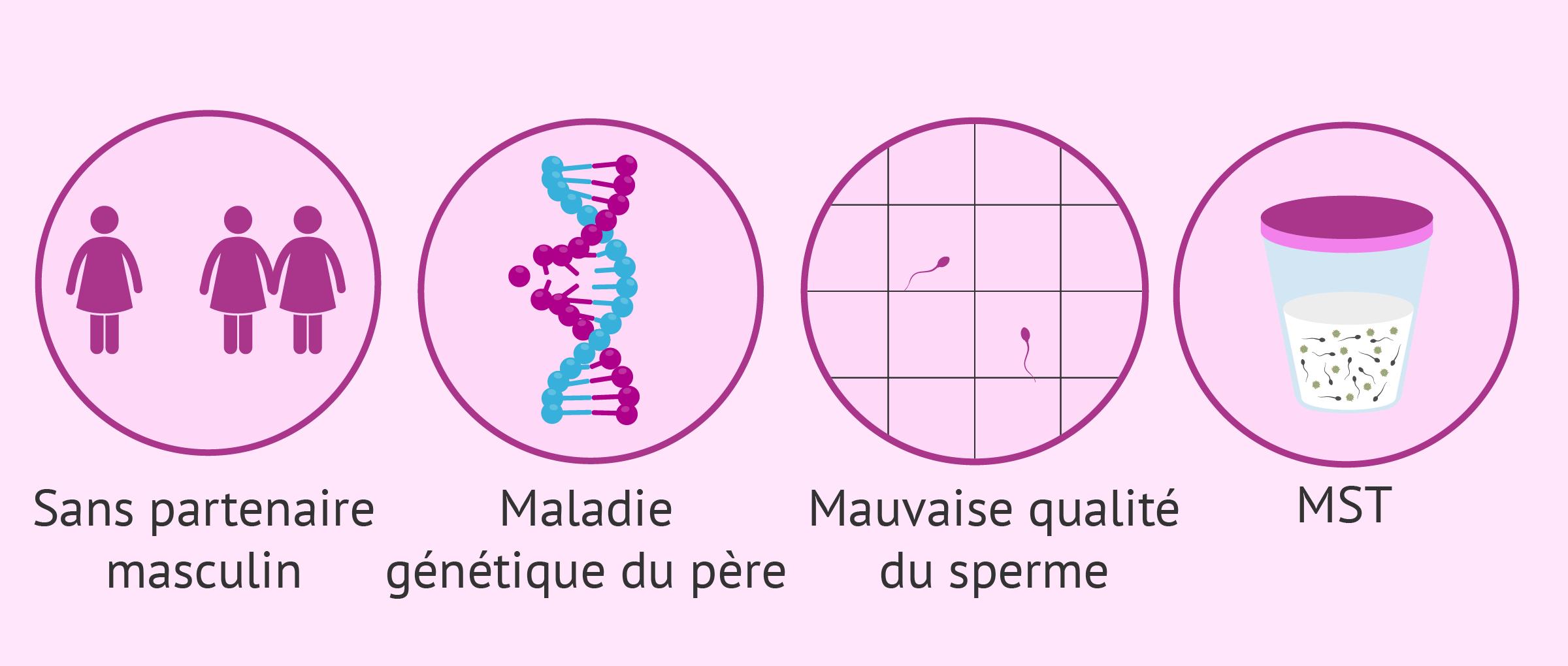 Indications de l'insémination artificielle avec du sperme de donneur