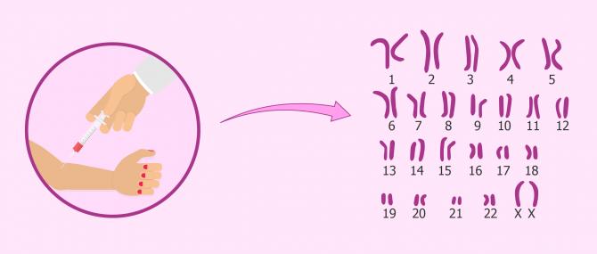 Stérilité d'origine génétique ou chromosomique
