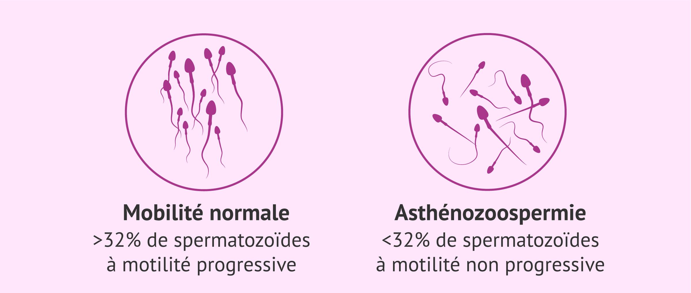 ICSI pour les problèmes de mobilité des spermatozoïdes