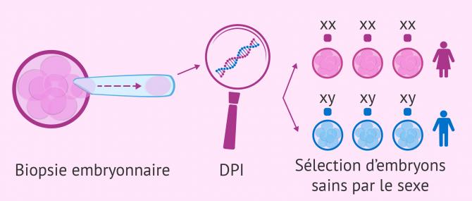 Sélection du sexe  par DPI
