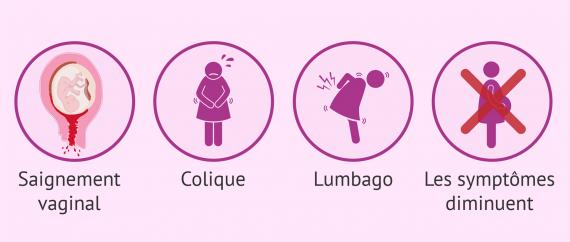 Symptômes de la fausse couche